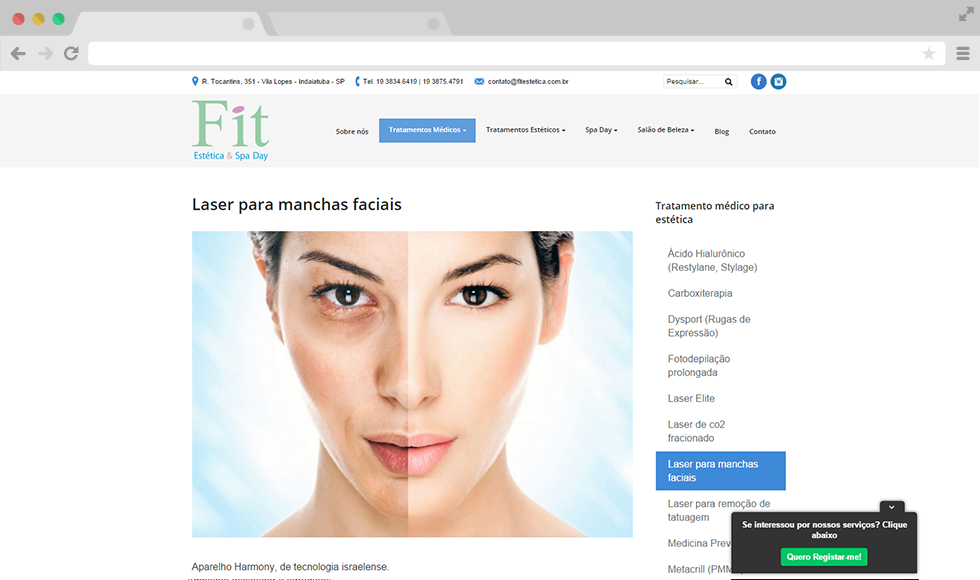 Site Fit Estética - Post interna